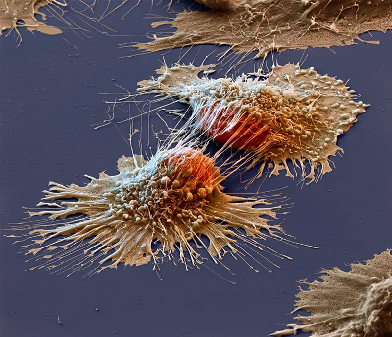 Cancer-cells-under-an-electron-microscope